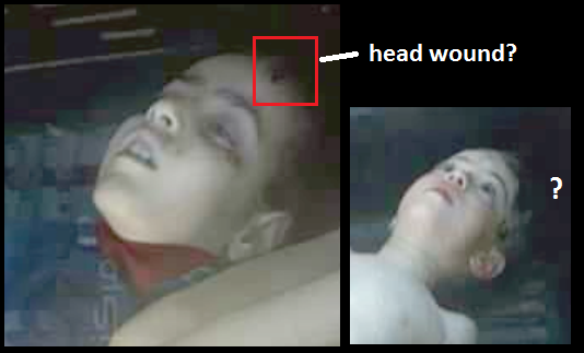 CW Khan Sheikhoun 2017 head wounds 2.png