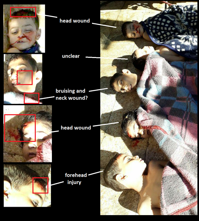 CW Khan Sheikhoun 2017 head wounds 1.png