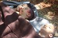 Khan Shaikhoun - boys with head wounds - ANA Press.jpg