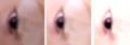 SACA Mohammed eye 3.png