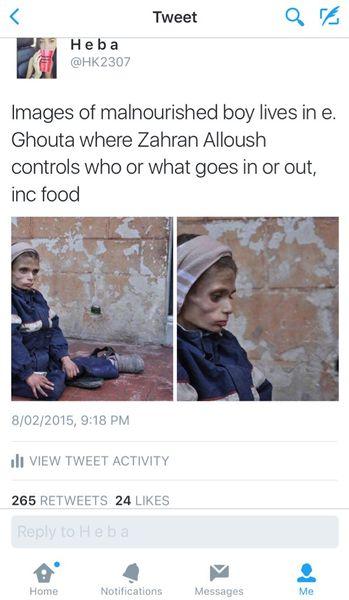 File:Malnourished child.jpg