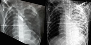 X-ray girl boy comp.jpg