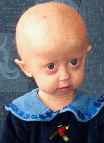 File:Hutchinson-Gilford Progeria Syndrome.png