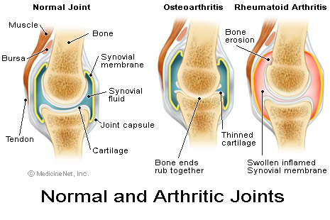 Arthritic joints.jpg