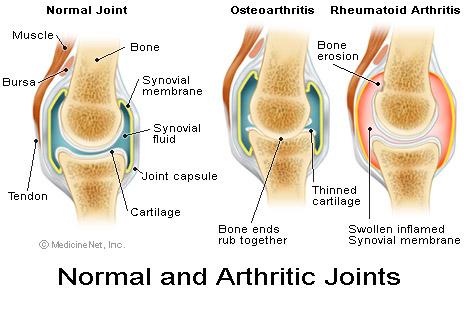 File:Arthritic joints.jpg
