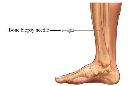 File:Bone biopsy.jpg