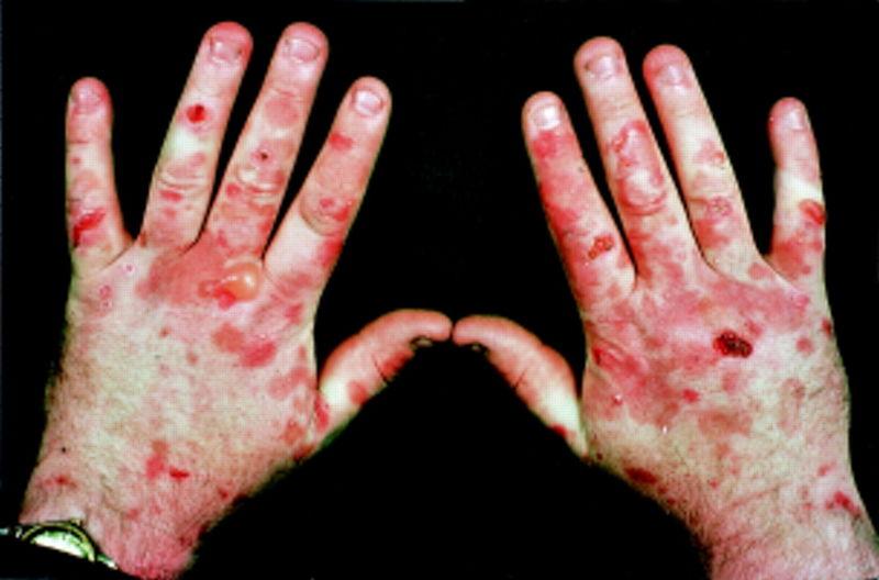 File:Cutaneous porphyria.jpg