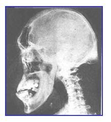 Basic X-Ray