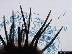 Spores Onion smudge Colletotrichum circinans.jpg
