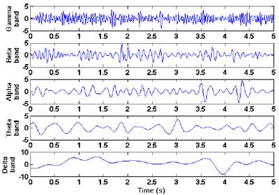 EEG Frequqencies